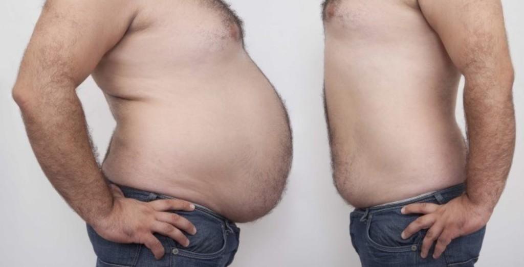 عمليات شفط الدهون في تايلند