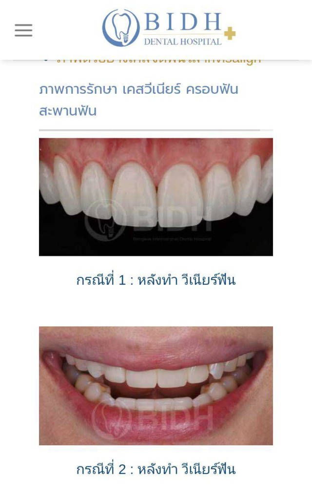مستشفى الاسنان في بانكوك
