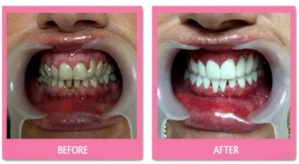 زراعة الاسنان في تايلند